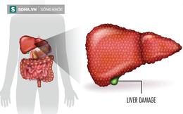 """Gan nhiễm độc làm tiêu tán sức khỏe: 8 """"vệ sĩ"""" giải độc và làm sạch gan bạn nên nhờ cậy"""