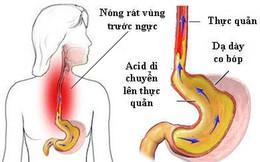 """Trào ngược thực quản có thể biến chứng thành ung thư: GS tiêu hoá mách cách """"sống chung"""""""
