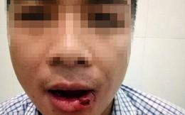 Thầy giáo ném thanh sắt vào mặt cán bộ tòa án làm gãy 5 cái răng