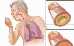4 cách làm sạch phổi phòng tránh ung thư
