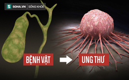 """5 loại """"bệnh vặt"""" không lo chữa, để quá lâu sẽ có nguy cơ tiến triển thành ung thư"""