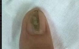 Kẻ sọc trên ngón tay: Dấu hiệu căn bệnh khiến người mắc ngại không dám... lấy chồng