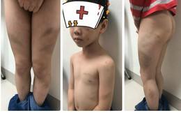 Bác sỹ Bệnh viện Việt Đức và vợ kế bị tố bạo hành con trai bầm tím khắp người