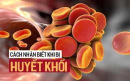 """5 triệu chứng """"ngầm"""" cảnh báo về bệnh huyết khối: Hậu quả nặng nề có thể bạn chưa biết"""