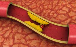 Dấu hiệu nguy hiểm cảnh báo tắc nghẽn động mạch: Nhận biết sớm, nguy cơ bị đột quỵ sẽ giảm