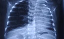 """BV Việt Đức vừa gặp trường hợp cực hiếm: Em bé có lá phổi """"khủng"""" đè lệch tim và khí quản"""