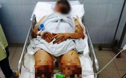 Nhận dạng nghi phạm tạt axit, cắt đứt gân chân nam Việt kiều: Người gầy, nói giọng Bắc