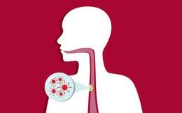 4 nhóm người có nguy cơ mắc ung thư thực quản đặc biệt cao: Hãy chú ý ngăn chặn sớm