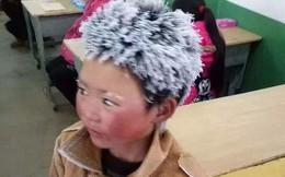 """Sau 1 năm khiến cả thế giới xúc động, cuộc sống của cậu bé """"tóc đóng băng"""" đáng thương giờ ra sao?"""