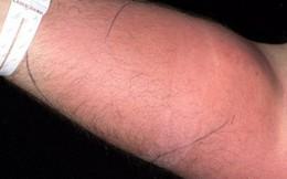 Lần đầu tiên có trong y văn: Người đàn ông tự tiêm tinh trùng vào tay mình, ngay lập tức nhập viện