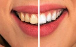 7 cách đơn giản ngăn ngừa sâu răng mà không phải ai cũng biết