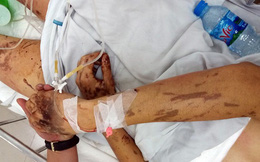 Nhiều tình tiết mới trong vụ tạt axit, cắt gân chân