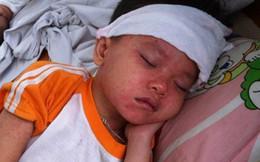 """Nhiều trẻ mắc sởi từ trào lưu """"anti vắc xin"""": Người lớn a dua, trẻ con chịu trận"""