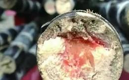 Suy đa tạng sau khi ăn mía có lõi đỏ