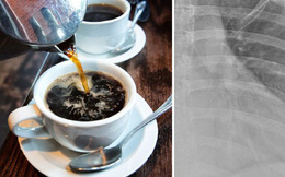Người phụ nữ 30 tuổi này đã uống 10 tách cà phê mỗi ngày và bác sĩ đã sửng sốt khi nhìn kết quả X-quang của cô