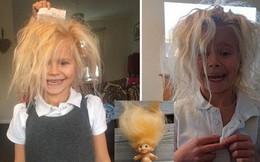Mắc hội chứng lạ khiến tóc vừa cứng, vừa bông lại còn xù lên lởm chởm thế nhưng cô bé này vẫn không ngừng gây sốt