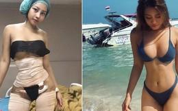 Hot girl bốc lửa Thái Lan bất ngờ công khai ảnh phẫu thuật để có eo con kiến, đây không phải lần đầu cô lột xác