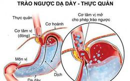 Phương thức hay chữa trào ngược dạ dày - thực quản
