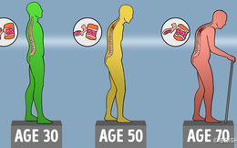 """Xương khớp cứ thế yếu và mất đi từng ngày: 10 cách """"giữ"""" xương để có thể đi lại tới già"""