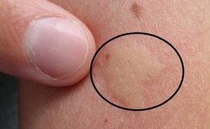 7 cách trị ngứa do muỗi đốt hiệu quả ngay lập tức