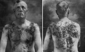 Bi kịch của những người Đức ở Mỹ trong Thế chiến thứ nhất