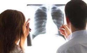 """Người phụ nữ bị """"thổi bay"""" mất một bên phổi trái chỉ vì... một chiếc răng giả"""