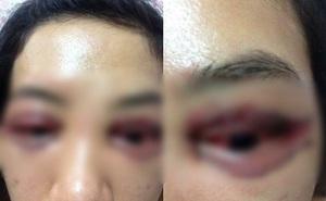 """Vụ cắt mí gây bão mạng xã hội: Mắt chảy máu nhưng nữ khách hàng """"không muốn làm to chuyện"""""""