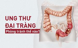 [Cẩm nang] 6 nguyên nhân gây ung thư đại tràng nhiều người Việt mắc mà không biết