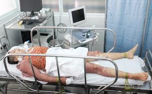 Chữa bệnh bằng bùa phép, 2 chị em ruột nhập viện trong tình trạng nguy kịch