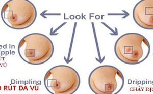 Bác sĩ bệnh viện Từ Dũ chỉ 7 dấu hiệu nếu có cần đi khám ung thư vú ngay