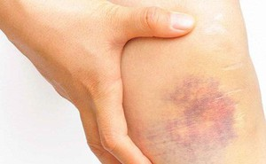 9 nguyên nhân không ngờ khiến bạn bị bầm tím cơ thể