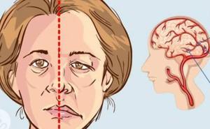 Phục hồi chức năng sau tai biến mạch máu não: Gian truân và cần sự kiên nhẫn từ cả người mắc lẫn gia đình