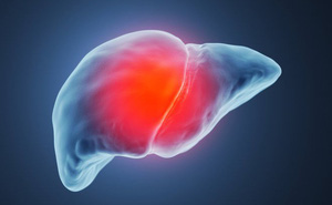 """5 nhóm người rất dễ bị bệnh ung thư gan """"tấn công"""": Khi phát hiện bệnh thường đã quá muộn"""
