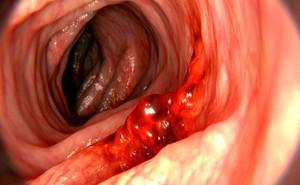 """Ung thư dạ dày có tỷ lệ tử vong cao: Làm đủ 4 việc để sớm ngăn chặn mầm bệnh """"sinh sôi"""""""