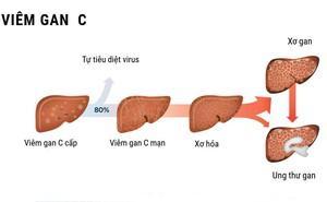 Nhiều người bị viêm gan C cấp tính nhưng không biết mình có bệnh: Những dấu hiệu cần lưu ý