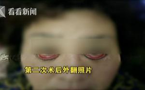 Ham mê phẫu thuật thẩm mỹ, người phụ nữ 60 tuổi không thể nhắm được mắt khi ngủ và có nguy cơ bị mù