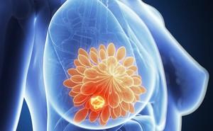 Là phụ nữ, cần cẩn trọng với 3 bệnh ung thư nguy hiểm