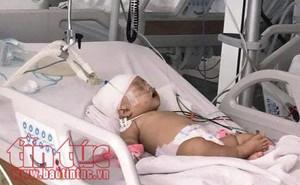 Bé gái 14 tháng tuổi bị khỉ cắn rách đầu