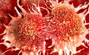Những dấu hiệu sớm báo động bệnh ung thư