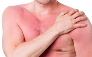 Học ngay một vài biện pháp để phòng ngừa nguy cơ nghiêm trọng xảy ra với cơ thể khi bị dị ứng