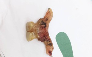 Suýt chết vì thủng ruột do nuốt phải... răng giả