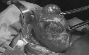 Thấy con gái có khối u ở cổ, từ chối mổ để tự hết, cha mẹ bàng hoàng khi biết là ung thư
