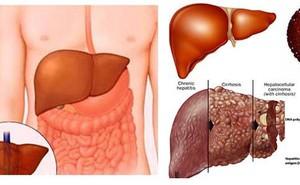 Khi nào người mắc bệnh gan không còn cơ hội cứu chữa?