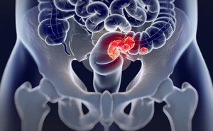 4 triệu chứng sớm rõ ràng nhất của ung thư trực tràng: Đừng để phát hiện bệnh khi đã muộn
