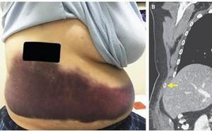 Ho quá mạnh dẫn đến gãy một xương sườn, bác sĩ phát hiện ra người phụ nữ này mắc căn bệnh rất đỗi quen thuộc mà không biết
