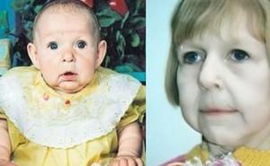 Chào đời với gương mặt già nua bị bố ruột chối bỏ, cô gái tự tạo nên kỳ tích ít ai ngờ tới