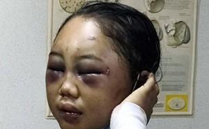 Sốc trước nạn bạo hành người giúp việc ở các quốc gia châu Á: Bỏ đói đến chết, đánh đập tàn nhẫn