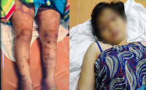 Luật sư: Vụ cô gái bị đánh đập khiến thai nhi tử vong kinh hoàng như các màn tra tấn thời Trung cổ