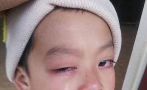 Phụ huynh tố cô giáo dùng thước đánh sưng mắt học sinh, nguy cơ mù một bên