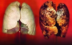 Khi gặp các dấu hiệu này, thì bệnh ung thư phổi cách bạn không còn bao xa